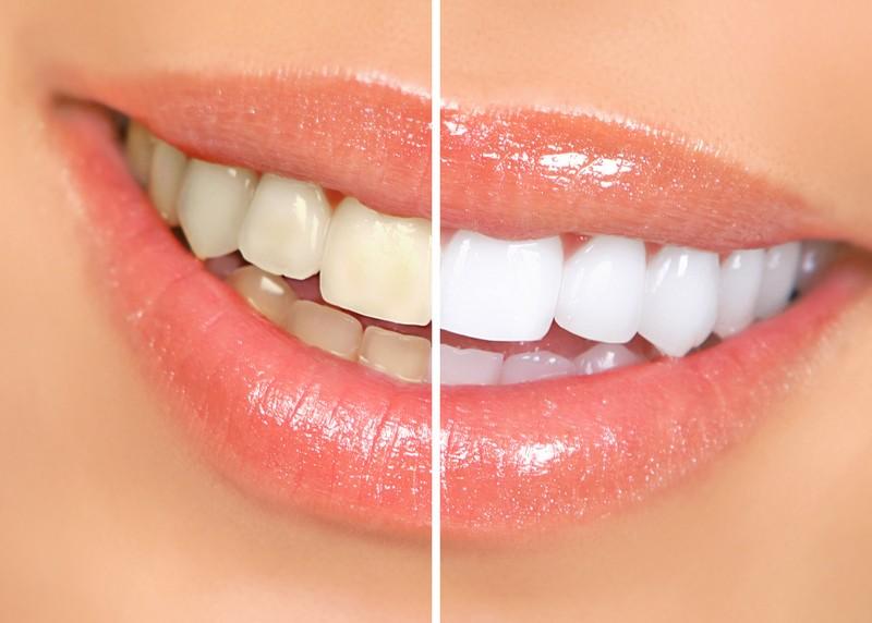 Teeth Whitening Milford, MA